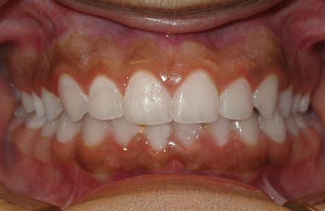 Deep Bite-Overbite Before and After Braces   McCormick