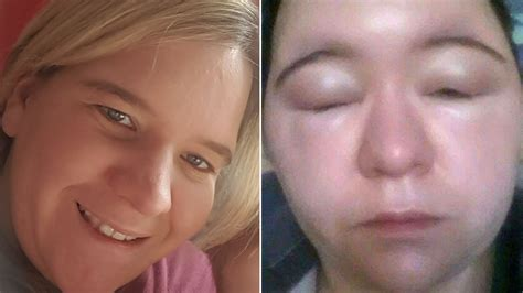 This Woman Suffered A Severe Allergic Reaction to Hair Dye