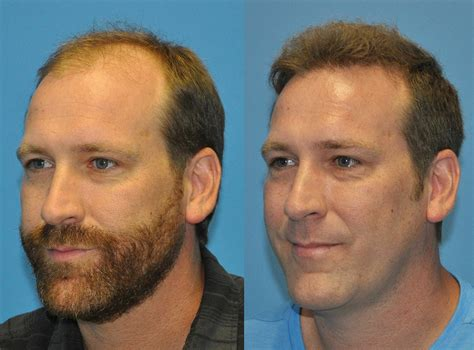 Norwood Class IV Hair Loss - 3000 FUE Hair Grafts